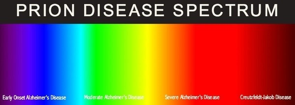 prion_disease_spectrum.jpg